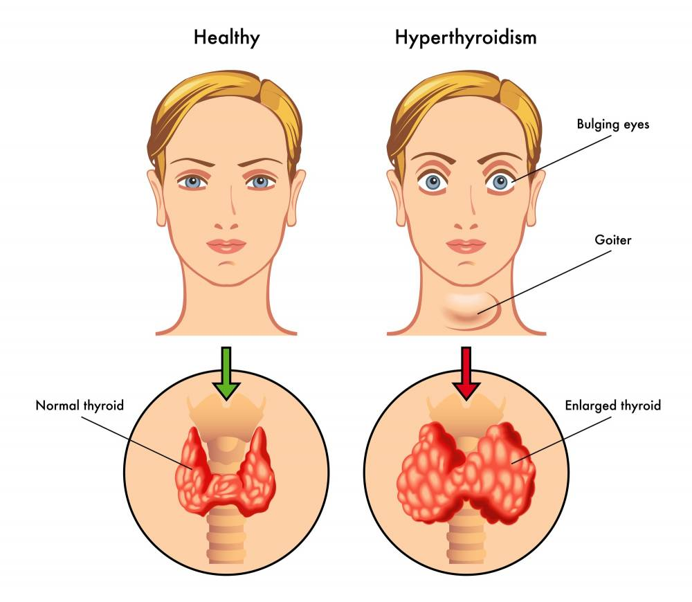 Herbal Remedies For Thyroid
