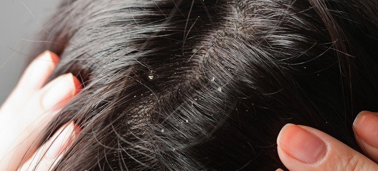 Using apple cider vinegar for dandruff treatment learning just how an apple cider vinegar cure for dandruff works you can feel more confident in your scalp skin and healthy hair in general ccuart Images
