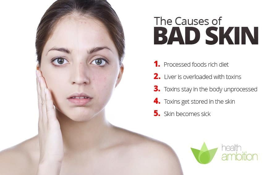 A list titled The Causes of Bad Skin next to a woman looking concerned and touching her face.