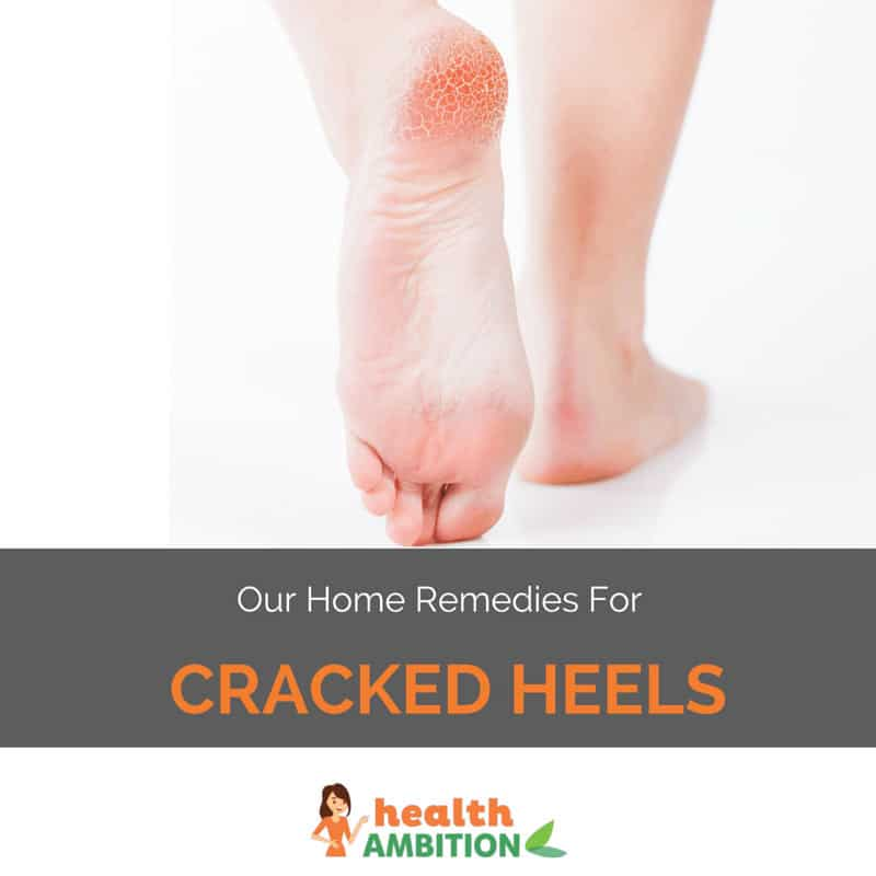 "Cracked heels with the title ""Our Home Remedies For Cracked Heels"""