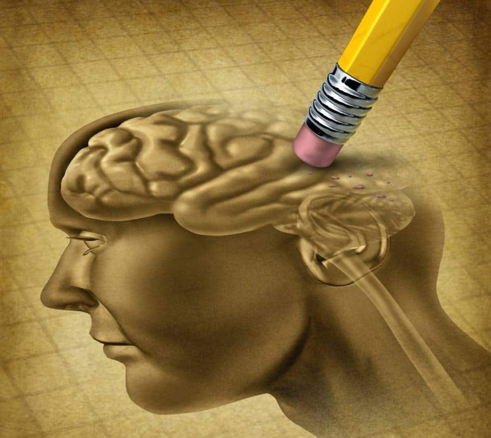 Drawing of a human brain being erased.