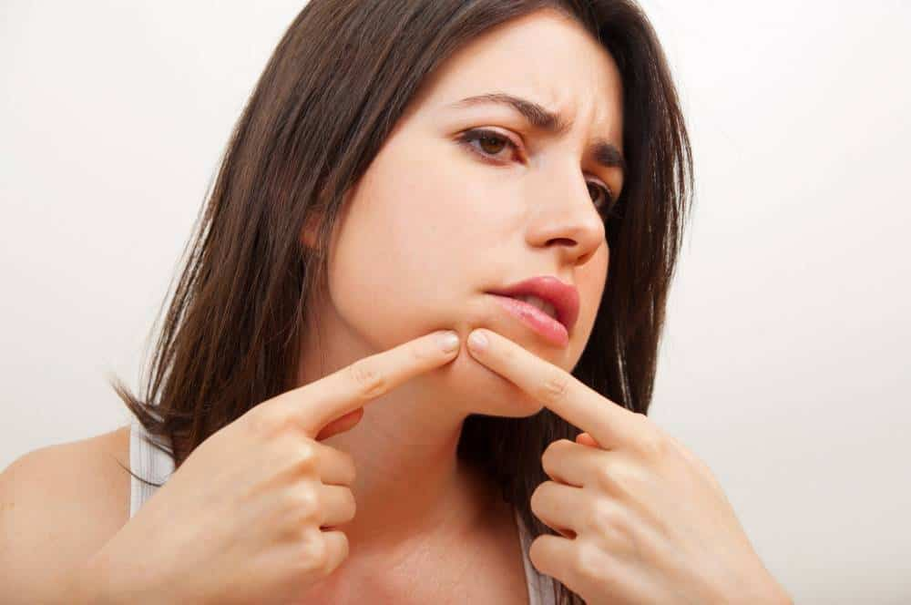 A woman popping acne.