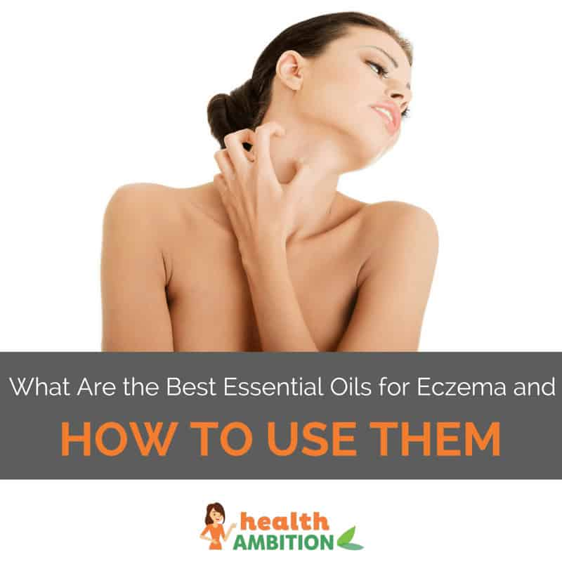 "A woman scratching her neck with the title ""What Are the Best Essential Oils for Eczema and How to Use Them"""