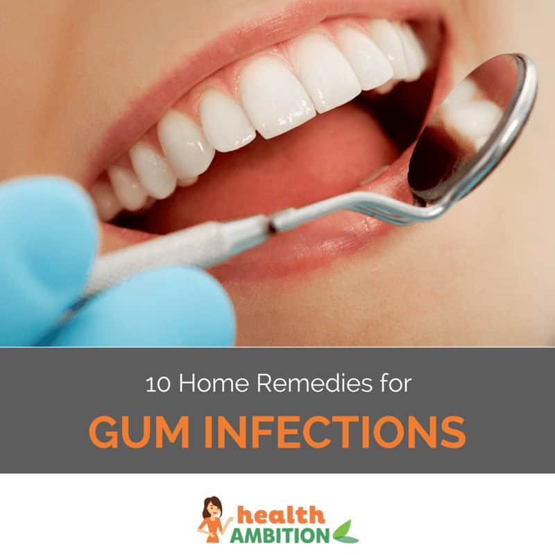 "10 home remedies for gum infections health ambitiona smilnig womanu0027s mouth during a dental examination with the title ""10 home remedies for"