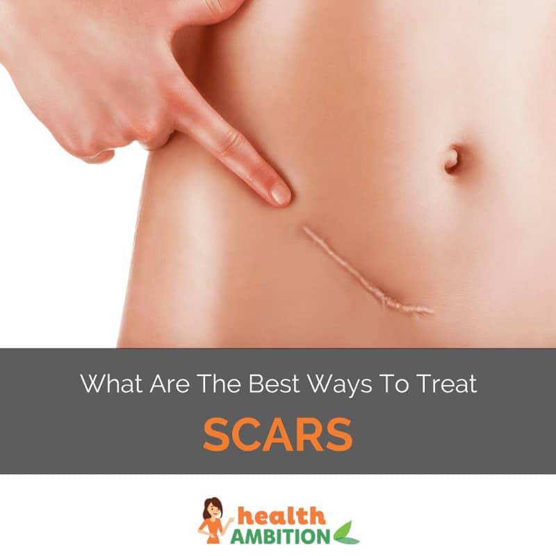 """A woman pointing at a scar on her waist with the title """"What are the best ways to treat Scars."""""""