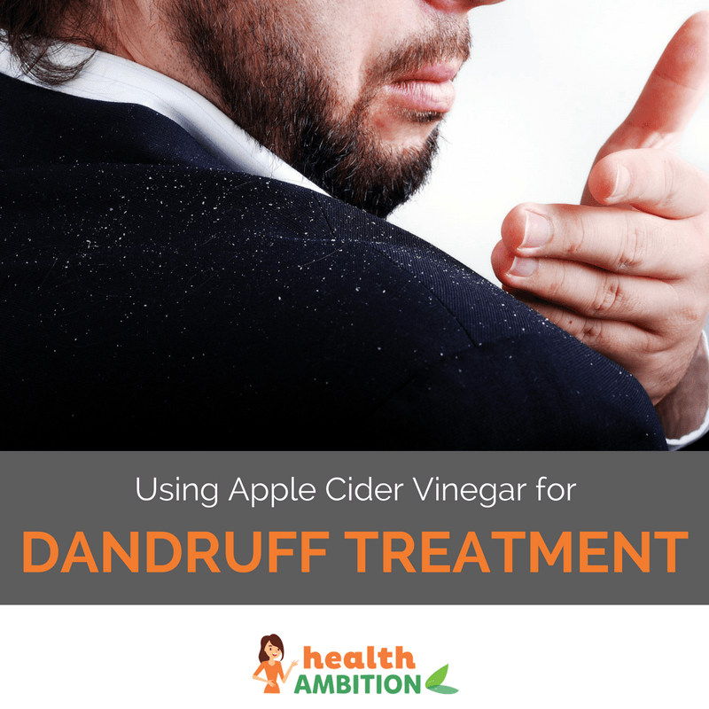"A man clearing the shoulder of his black suit from dandruff with his hands with the title ""Using Apple Cider Vinegar for Dandruff Treatment."""