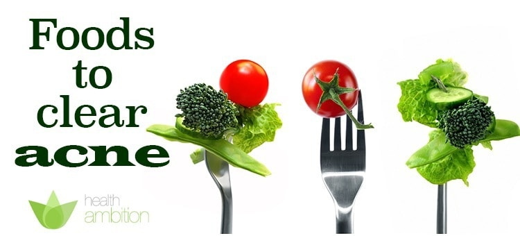 "Various greens on forks with the title ""Foods to clear Acne"""