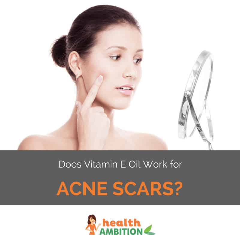 "A woman looking at herself in a mirror with the title ""Does Vitamin E Oil Work for Acne Scars?"""