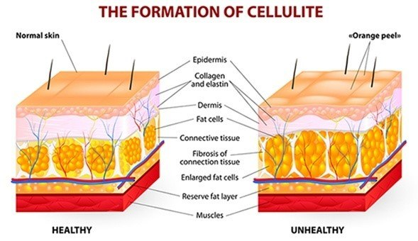 A graph explaining the formation cellulite.