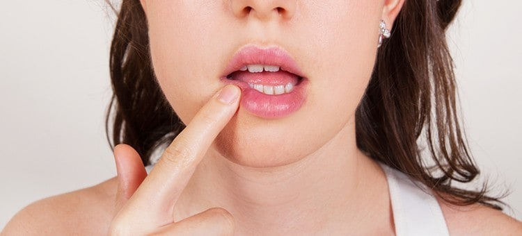 A woman touching the side of her lips with her finger, indicating inflammation.