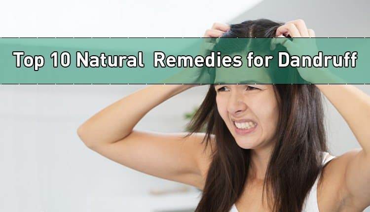 "A woman scratching her head with both hands with the title ""Top 10 Natural Remedies for Dandruff."""