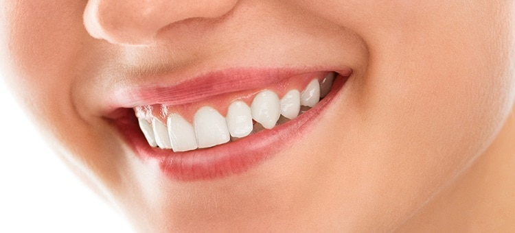 A smiling woman with very healthy gums and teeth.