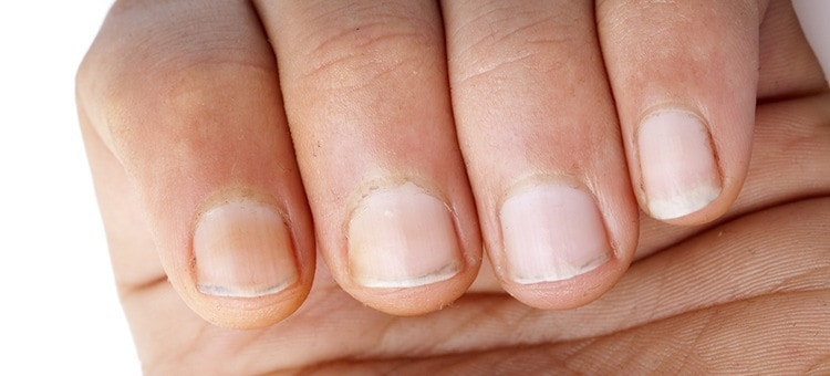 Nails on a person's hand.
