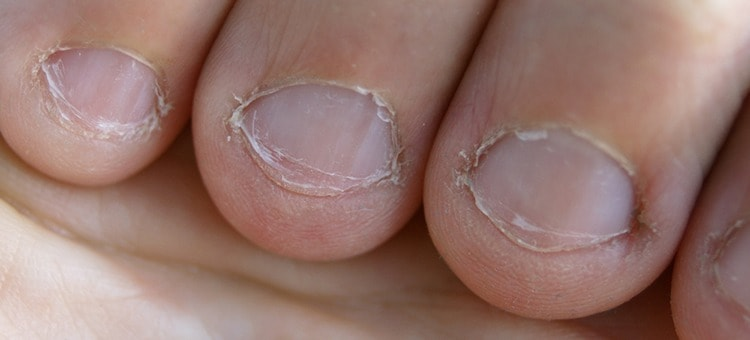 Broken nails on a person's fingers.