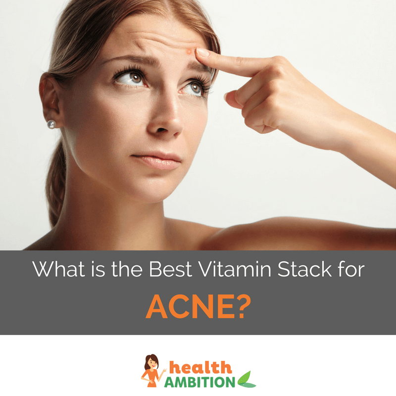 "A woman with acne with the title ""What is the best Vitamin Stack for Acne?"""