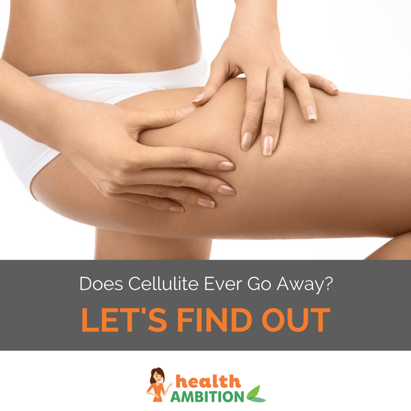 "A woman checking her thighs for cellulite with the title ""Does Cellulite Ever Go Away? Let's Find Out"""