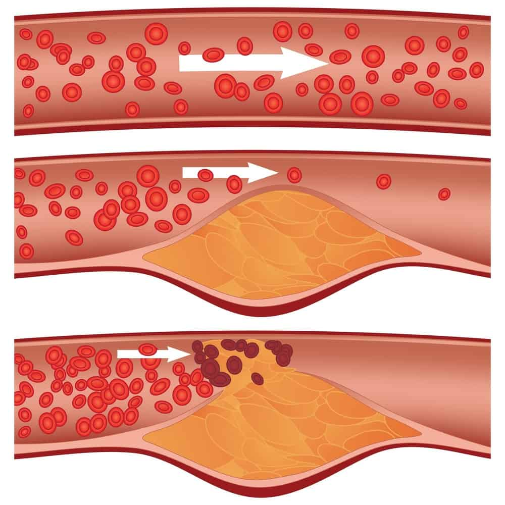 Graphic depicting blocked veins due to cholesterol.