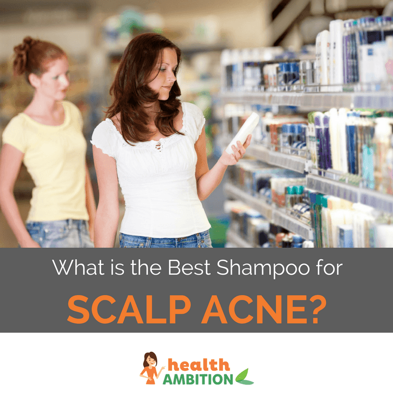 """Women shopping for cosmetic products with the title """"What is the Best Shampoo for Scalp Acne?"""""""