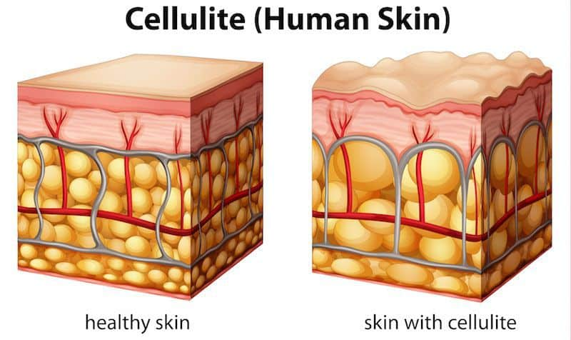 A graphic depicting cellulite.