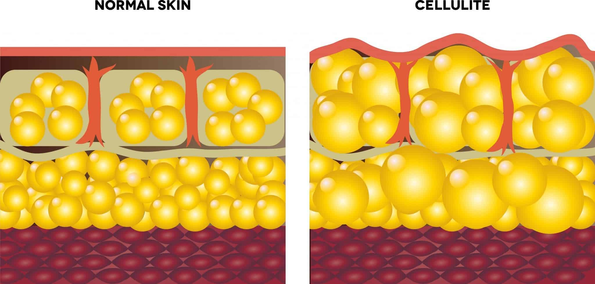 A graphic showing the formation of cellulite under the skin.