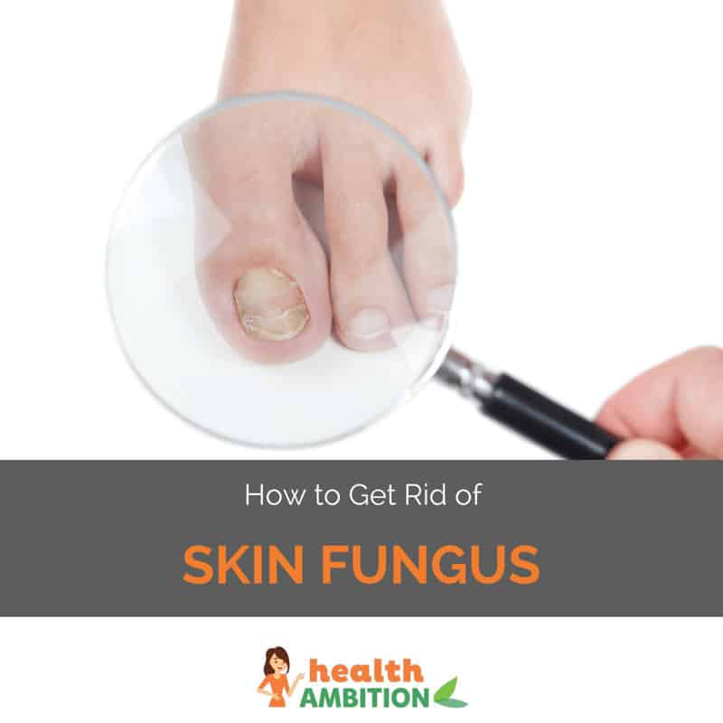 "Magnyfing glass of fungal infection on foot with the title ""How to Get Rid of Skin Fungus"""