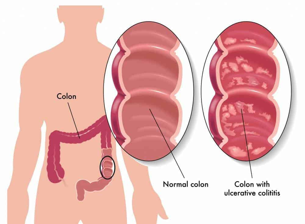 A grpahic of comparison between a normal colon and a colon infected with Ulcerative Colitis.