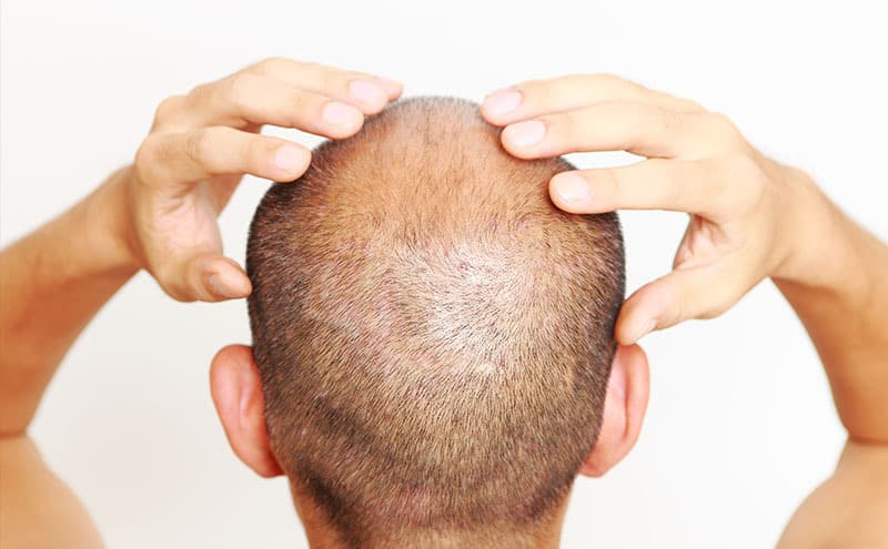 Close-up of man with dry scalp, in need of the best scalp moisturizer.