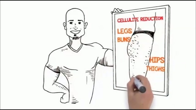 Drawing of a man demonstrating cellulite issues.